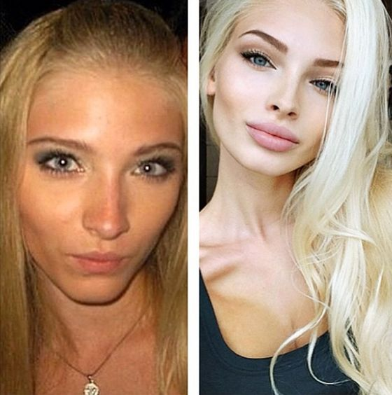 Олеся малибу фото до и после операции, как снимает русские порно