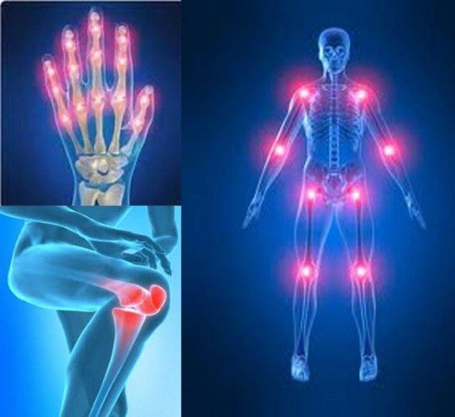 Remedios naturales para dolores reumáticos. Es el dolor de las articulaciones y los músculos, ya sea por inflamación, artritis o por algún desgaste.