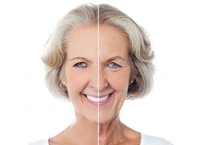 Kollagén előtt és után fiatal-oreg.jpg