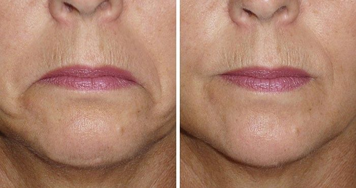 Als we ouder worden gaat alles 'wat meer hangen' – ook je mondhoeken! Je mond wordt met ouder worden steeds minder krachtig waardoor je last kan krijgen van hangende mondhoeken.