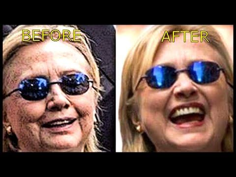 Does Hillary Clinton have a body double or did she get a facelift lose weight and get a haircut all at Chelsea's