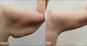 #Exercícios #PeleFlacida Melhores exercícios para perder gordura do braço em apenas uma semana!