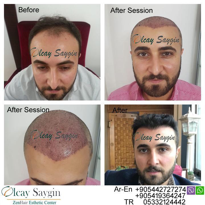 hair transplant, hair transplant turkey, olcay saygin, euro