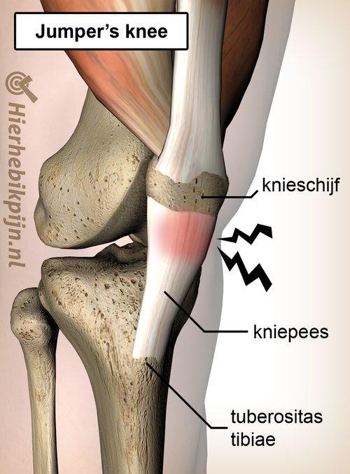 knie jumpers knee pijn patella pees tendinitis