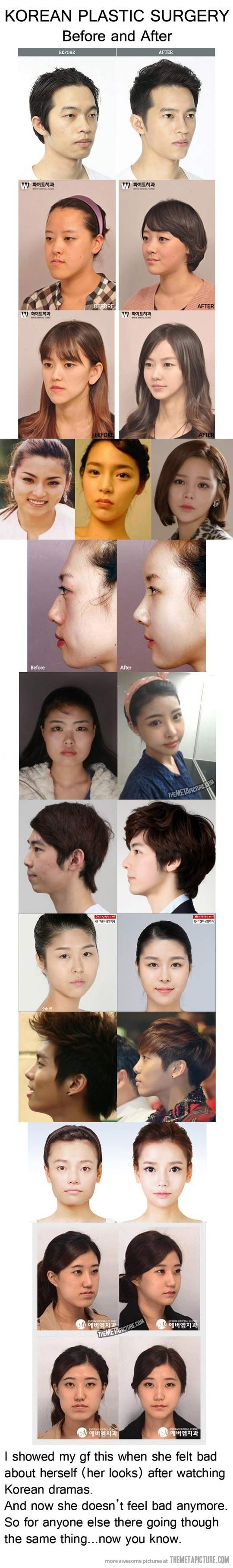 Face-altering Korean plastic surgery…good to know about so that you realise people everywhere get concerned about their looks and we shouldn't feel pressure to reach the 'ideal'