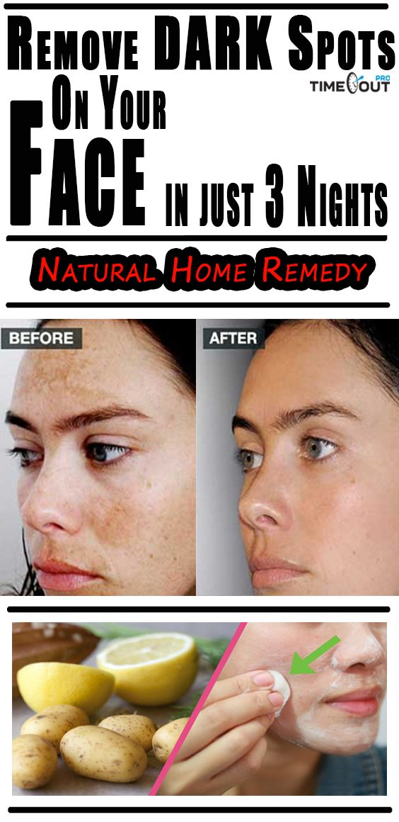 Today we're going to show you how to prepare several recipes that will remove dark spots and stains from your face. The remedies are completely natural, so you don't have to worry about adverse side-effects.