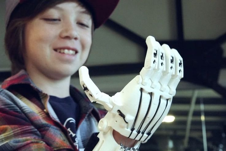 Eastman Chemical Partners with Chung-Ang University to 3D Print Prosthetic Hands for Children in Asia