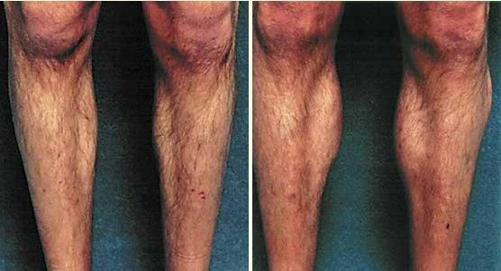 Celebrity Well Defined Athletic Calves After Implants - http://plasticsurger.com/celebrity-well-defined-athletic-calves-after-implants/