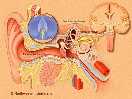 Cambridge: Scientific study of a single patient with Chiari and hearing loss and tinnitus. After decompression surgery her hearing loss was eliminated and hearing returned.
