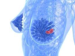 penyebab kanker payudara dan cara mengatasinya  #carapengobatankankerpayudaramanjur #carapengobatankankerpayudaramujarab #carapengobatankankerpayudaranampuh #obatkankerpayudara #obatkankerpayudarawanita