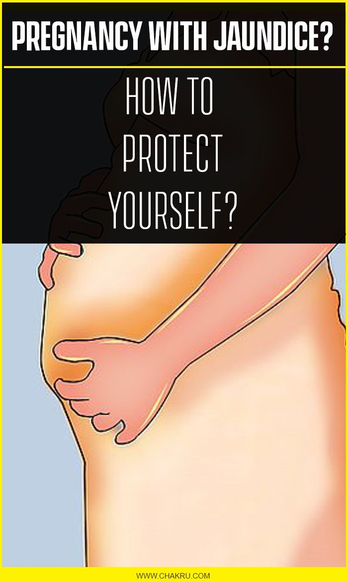 Pregnancy With Jaundice, How to Protect Yourself