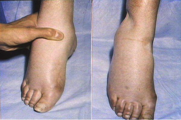 Készítsük el: természetes pakolás a lábduzzadás ellen