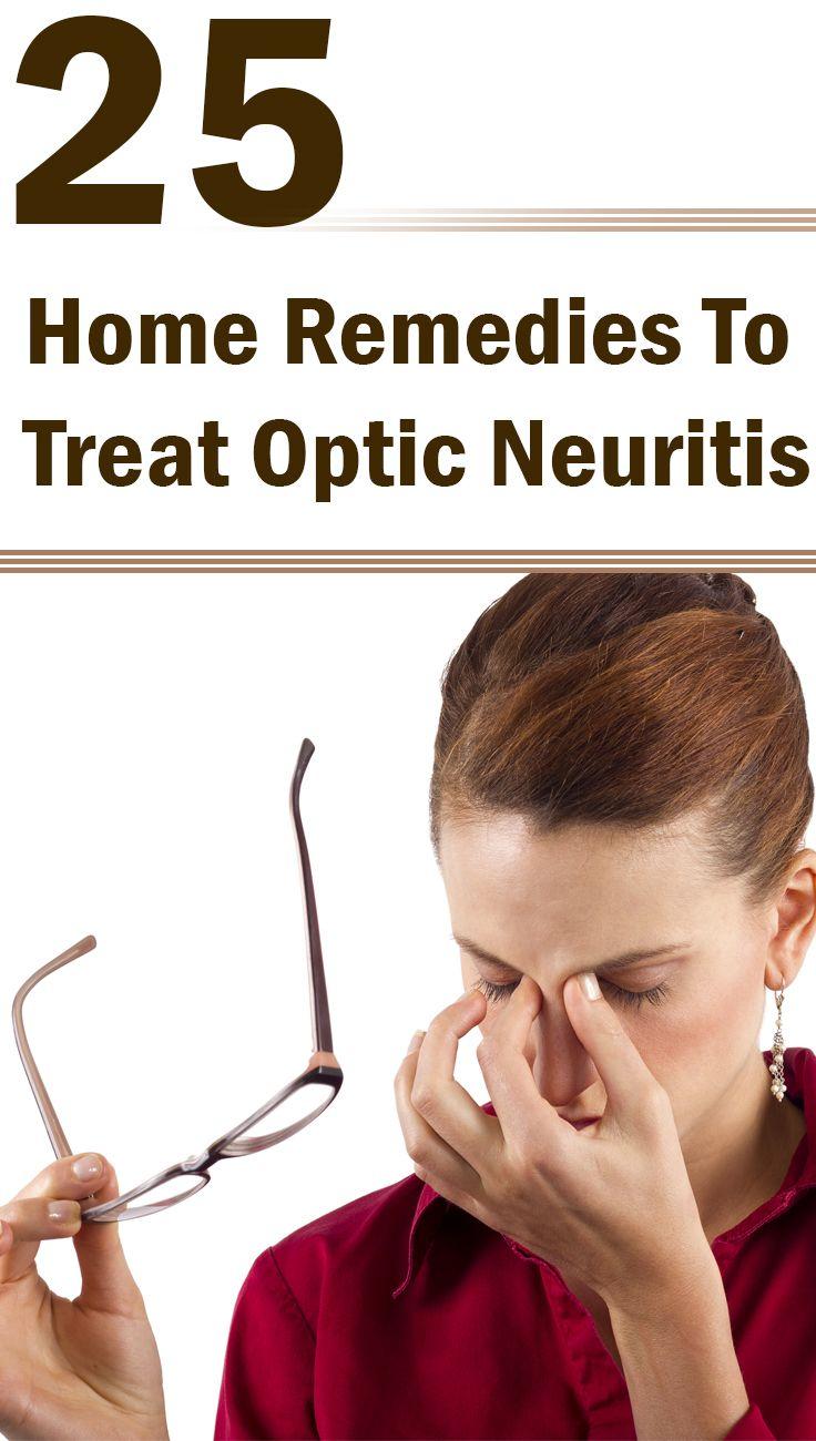 25 Effective Home Remedies To Treat Optic Neuritis