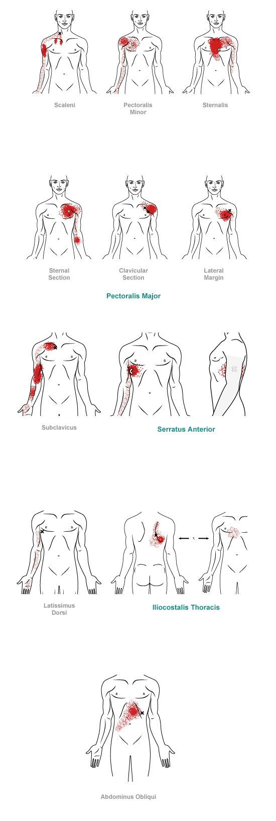 trigger point referral pain pattern for the chest
