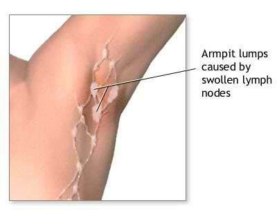17 Home Remedies To Treat Painful Armpit Lumps Have you ever experienced pain under your armpit and found a lump? These lumps are generally caused due to swollen lymph nodes. A swollen lymph node generally indicates that your body is fighting an infection. However, in a few cases it could also mean or indicate cancer and if the lump refuses to go away, it is important for you to consult the doctor. But all lumps are not cancer! It is more likely a benign infection that has led to the painful…