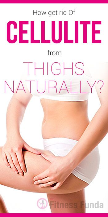 How to get rid Of Cellulite from Thighs Naturally? #weight_loss