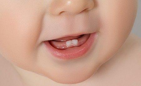 Neue Studien bestätigen die Giftigkeit von Fluoriden - insbesondere für Babys und Kinder. Fluoride werden schon Säuglingen vom Tage der Geburt an zur Kariesprophylaxe verabreicht – und das, obwohl sich Wissenschaftler überhaupt nicht darüber einig sind, ob dieses Vorgehen wirklich nützlich oder eher schädlich ist.