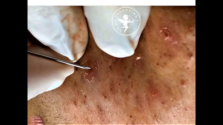 [BLACKHEADS]. Remove p2. Most Satisfying Skin Care…
