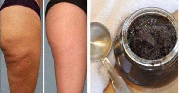 Cellulite: ecco come ridurla con uno scrub a base di prodotti naturali La cellulite è un inestetismo della pelle che si forma fin da