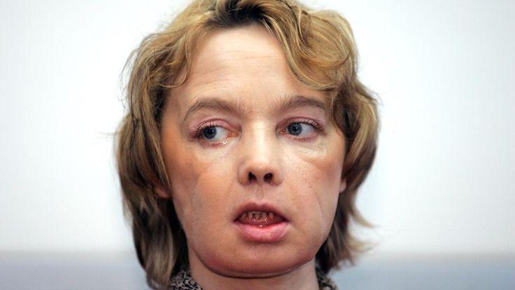 Frau mit transplantiertem Gesicht: Isabelle Dinoire ist tot