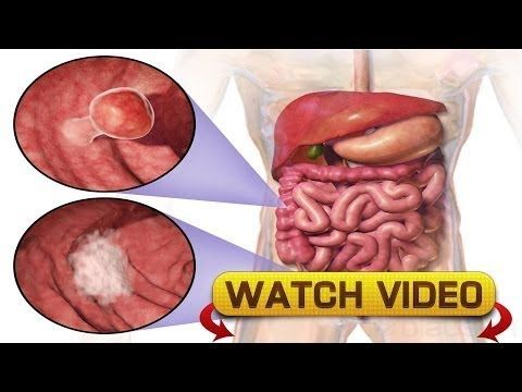Know how to spot colon cancer by paying attention to these signs - WATCH VIDEO HERE -> http://bestcancer.solutions/know-how-to-spot-colon-cancer-by-paying-attention-to-these-signs    *** signs of colon cancer ***   Know how to spot colon cancer by paying attention to these signs. Colon cancer impacts the large intestine and in most cases it starts as a clump of noncancerous cells named adenomatous polyps which developes in to cancerous cells over time. Polyps is manifested..
