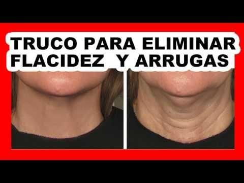 ¡MÉDICOS ATERRADOS! ESTE TRUCO ELIMINA LA PIEL ARRUGADA Y FLACIDA BARATO Y FÁCIL ¡MIRA CÓMO! - YouTube