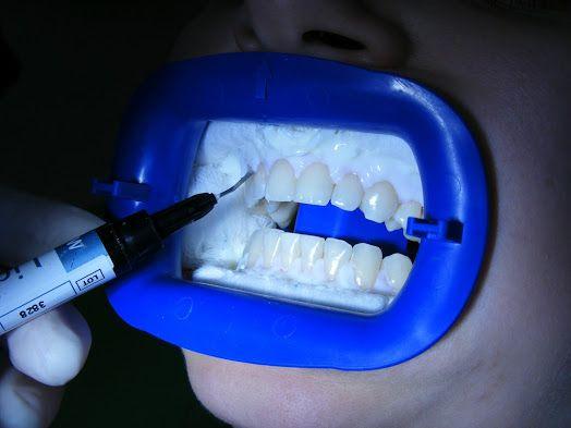 Come sbiancare i vostri denti? Avete bisogno di sbiancamento di dente devitalizzato o  sbiancamento vitale ? Trattamento sbiancante per Vostri denti in nostro  studio dentistico  in Romania ! Vi invitiamo a vedere di più qui e contattaci subito! http://www.intermedline.com/dental-clinics-romania/ #clinicadentale #clinicadentaleinRomania #clinicaodontoiatrica #clinicaodontoiatricainRomania #sbiancamentodentale #sbiancamentodentaleinRomania #sbiancamentodidenti #sbiancamentodidentiinRomania