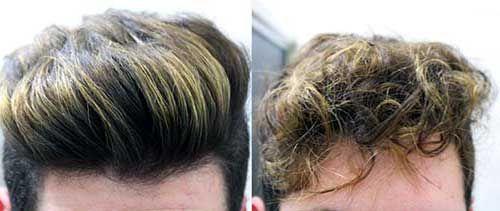 resultados da pomada para cabelo
