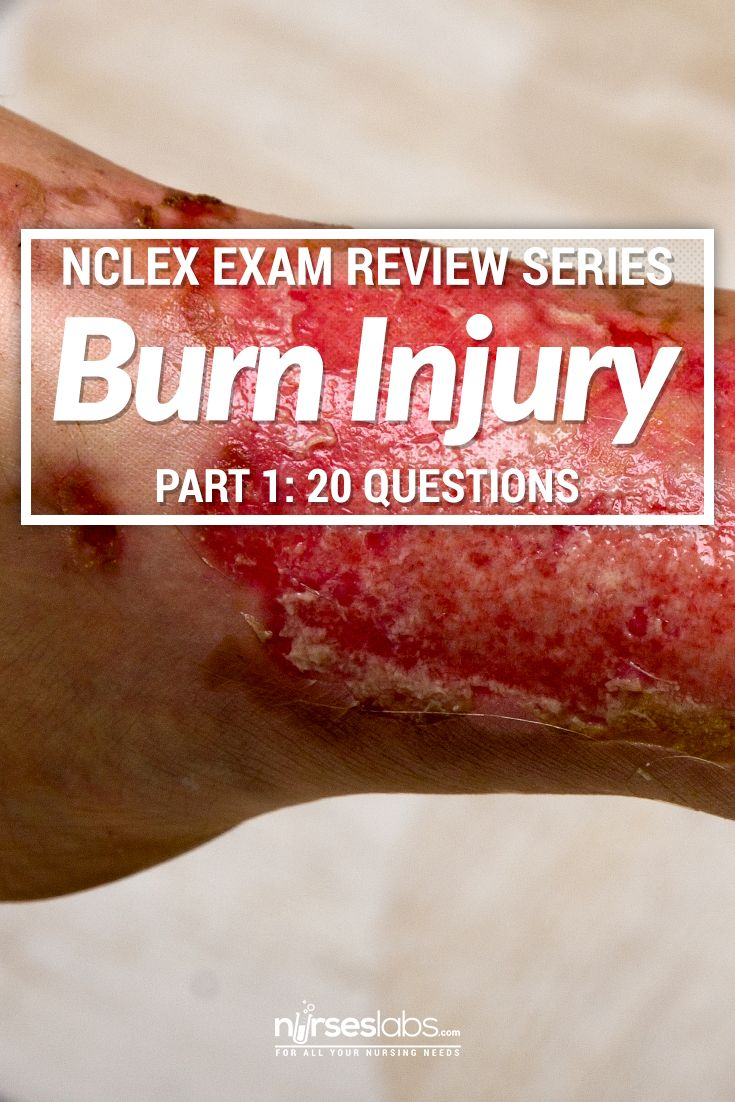 Questions about burn injury and it's management often pop up in the NCLEX. Do not fear as these questions are relatively easy to answer as long as you know the basic concepts about burns. Challenge yourself to with this 20-item practice exam about burns.