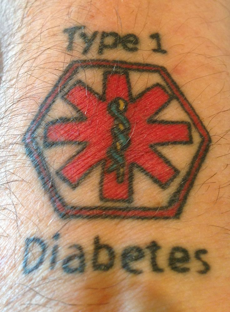 Type 1 Diabetes  Medical Alert Tattoo on the right wrist for those who do not like to wear the bracelet.