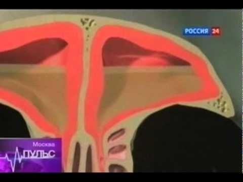 Лечение хронического синусита, фронтита - YouTube