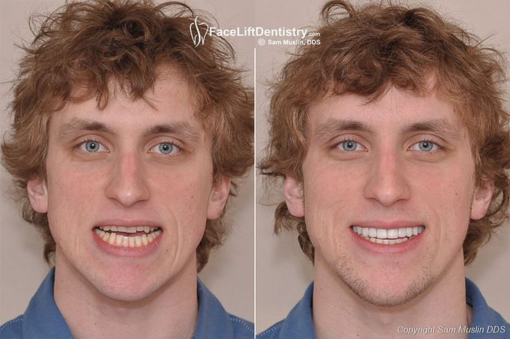 Face Lift Dentistry, VENLAY, JawTrac by Dr Sam Muslin