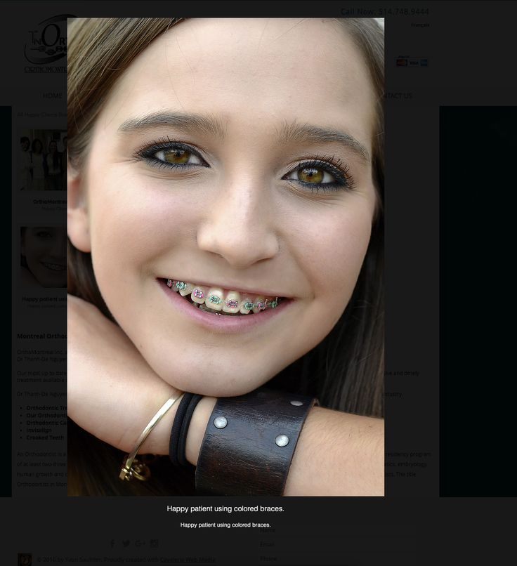 Cavalerie Web Media est sur un nouveau projet de site internet.. Orthodontics is a recognized specialty in dentistry that diagnoses, treats and even prevents irregularity in the teeth and in the face. Orthodontics can treat and correct what is known as ...