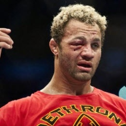 Not a big Josh Koscheck fan -- but this is a face that does NOT quit. (after his fight with GSP)