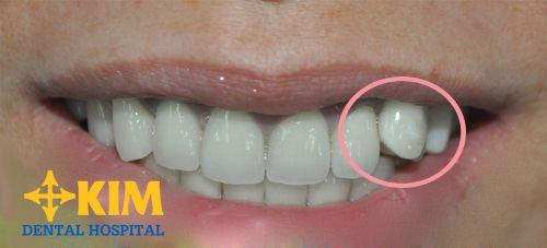 """Làm răng khểnh – Giải pháp tạo """"nét duyên ngầm"""" nên thử"""