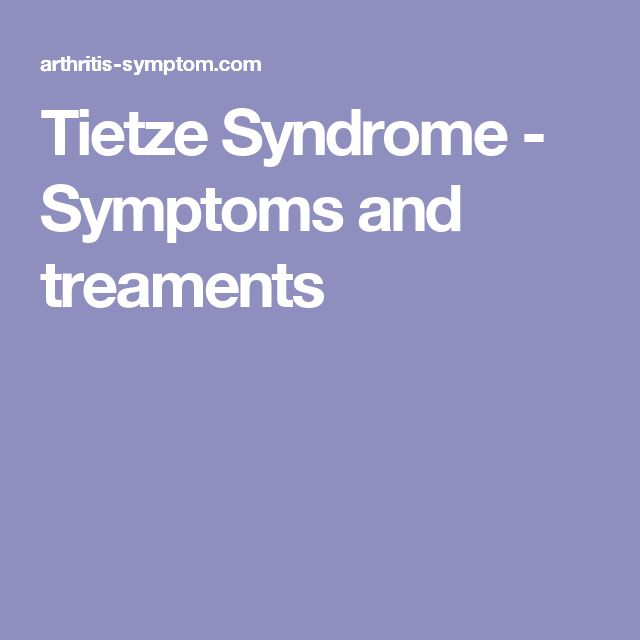 Tietze Syndrome - Symptoms and treaments