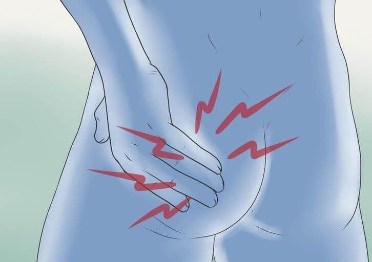Синдром грушевидной мышцы: симптомы и упражнения