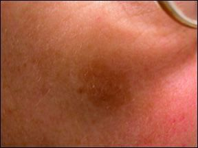 Who determines a spot is skin cancer?