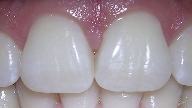 The porcelain veneers are known to resist stains much better than the veneer made from resin material. It is also known to mimic better the natural light reflection property of the teeth