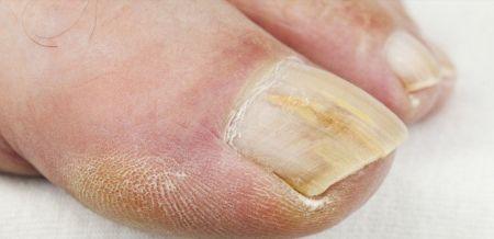3 remèdes très simples pour traiterles mycoses de l'ongle