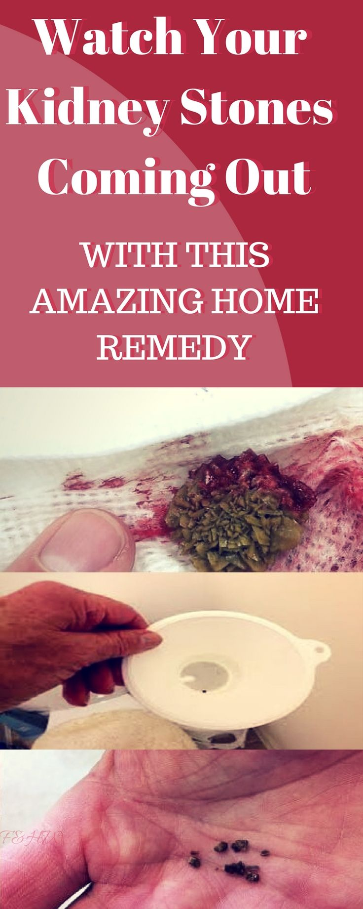 Watch Your Kidney Stones Coming Out With This Amazing Home Remedy http://wp.me/p7S39D-Nf