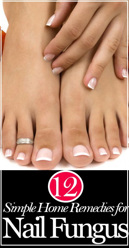 12 DIY Home Remedies for Nail Fungus:: Nail fungus (either on your