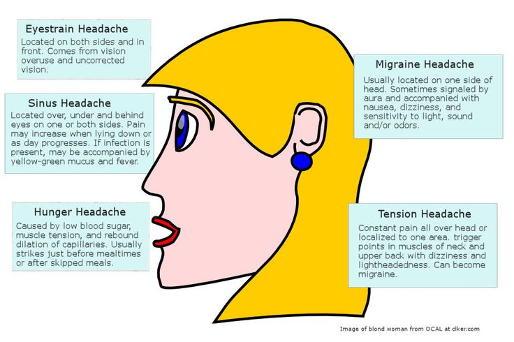 Migraine Headache Diagram | headache_diagram