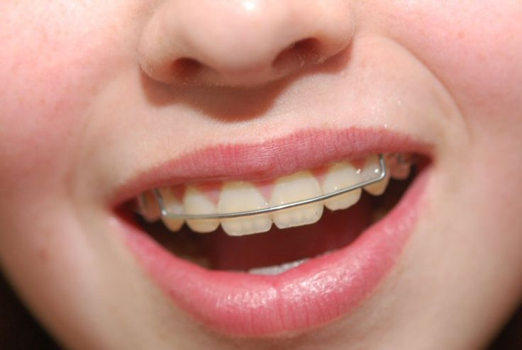 What is Essix retainer care?