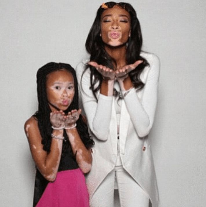 Inspiration: Young Model Channels The Confidence of Winnie Harlow