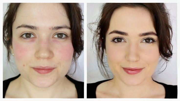 Monday Makeup Lesson is BACK!!  How to cover Rosacea/Redness  I tinted my skin with red cheek stain (alot of it!) and set it with a waterproof spray so I can show you how to cover it up!  https://www.youtube.com/watch?v=kORX1_18rk4&feature=youtu.be