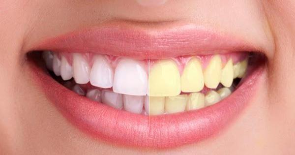 Cómo blanquear los dientes en 1 semana con este remedio casero