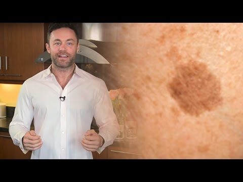Simple Trick to Remove Brown Spots from Your Skin | TipHero