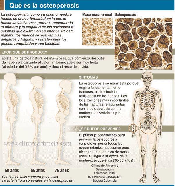 10+ Que es osteoporosis y sus sintomas viral