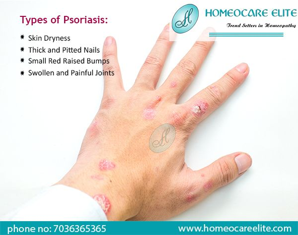 Psoriasis Is An Autoimmune Skin Disorder Which Is Raised Due To